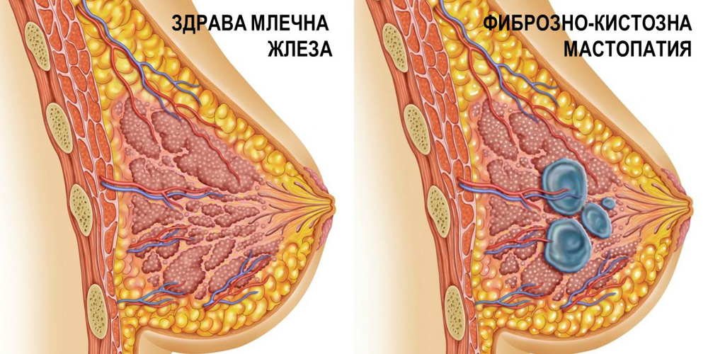 Мастопатия - терапия