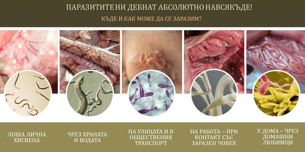 Umor de helminti, Helminti Enterobius