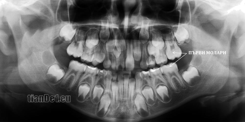 (Панорамна снимка на дете на 7-годишна възраст с поникнали постоянни горни и долни централни резци, горни латерални резци и поникнали шести постоянни зъби (първи молари). Всеки момент предстои смяна на долните първи предкътници, а след тях на горните)