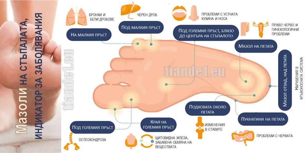 Мазоли по краката - сигнал за заболявания